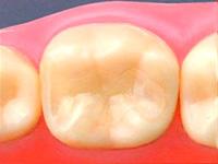審美歯科治療メニュー