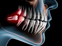歯科口腔外科疾患