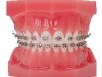 矯正歯科治療方法